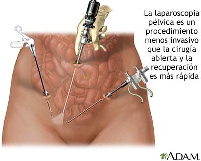 Biopsia Endometrial