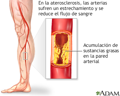 Arteriopatía Periférica En Las Piernas